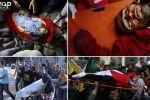 التجمع الوطني للجرحى : 121 شهيداً و13 ألف جريح منذ بدء هبة القدس الجماهيرية