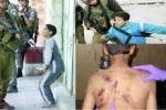هيئة الأسرى تكشف عن شهادات حية لأسرى وأطفال تعرضوا لظروف اعتقال همجية  من قبل جنود الاحتلال الإسرائيلي