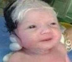 طفل سوري يولد بشعر ابيض