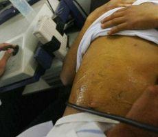مرض الكبد الدهني قد لا ترافقه أعراض خلال المرحلة الأولى