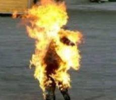 غزة : اصابة مواطن بجراح خطرة جدا حاول الانتحار حرقا
