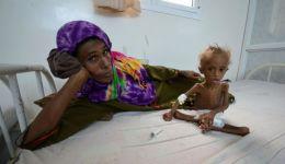 ارديان: أطفال اليمن .. هياكل عظمية تخشى خروج الروح