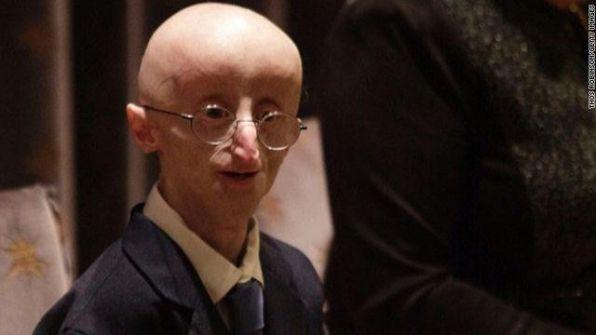 سام بيرنز.. الطفل الذي يفارق الحياة بسبب شيخوخته