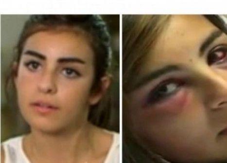 'تامارا'.. أول لبنانية تسجن زوجها بعد تعديه بالضرب عليها ومحاولة حرقها