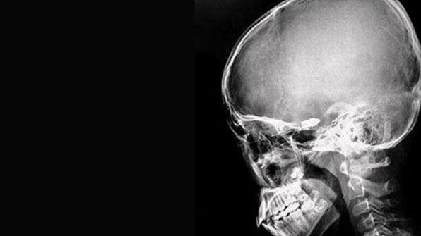 صينية تعيش منذ 48 سنة مع رصاصة في رأسها