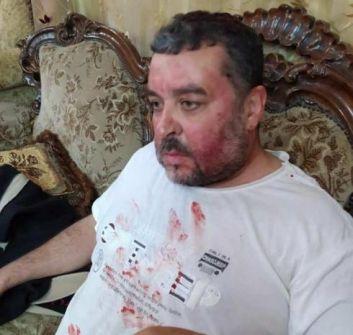 يعبد: الاحتلال يعتقل الشاب براء علي ويعتدي بالضرب على عائلة حمارشة