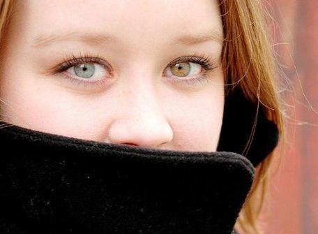 اختلاف لون كلتا العينين عند البشر، حالة في منتصف الطريق بين الجمال الأخاذ وغرابة المنظر