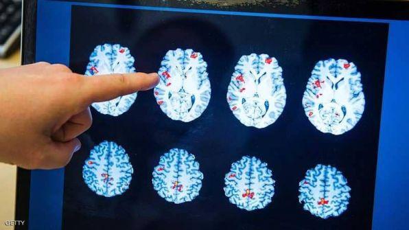 دماغ الرجل أم المرأة.. دراسة تكشف 'الفارق المذهل'