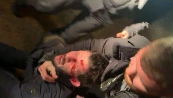 شاهد الفيديو :اجرام اسرائيلي بحق شاب فلسطيني في تل ابيب