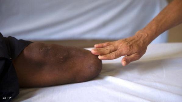 عثر على ساقه بالقمامة فقاضى المستشفى