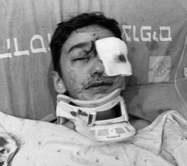 القدس: الطفل مالك عيسى 9 سنوات اصيب برصاصة مطاطيه احتلالية قد تفقده عينه