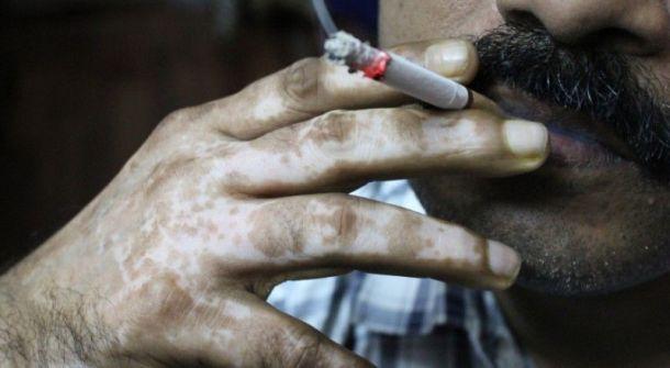 المدخنون يتسببون بالجلطة الدماغية