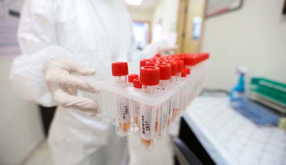 الصحة: 10 وفيات و503 إصابات جديدة بكورونا