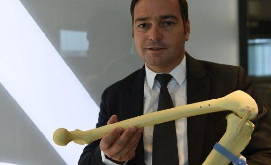 ابتكار أول ركبة صناعية من طباعة الخلايا الحية